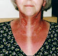 Picture of weeping radiotherapy  burn on face and neck.