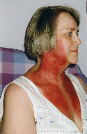 Red skin on neck and upper chest - Dermatology - MedHelp